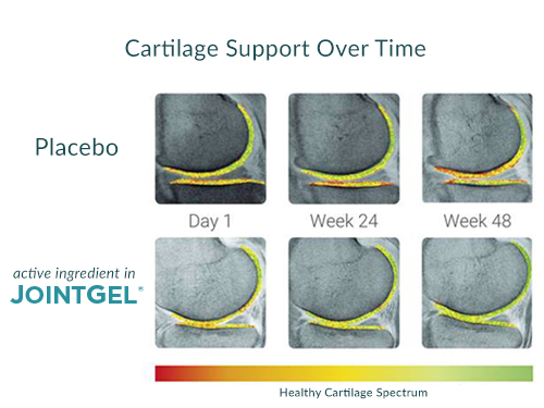JointGel Joint Cartilage Regeneration